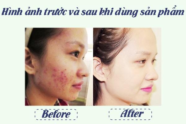 Trước và sau khi dùng sản phẩm 1 tuần.