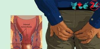 Bệnh trĩ: Nguyên nhân, dấu hiệu - triệu chứng, cách chữa trị hiệu quả