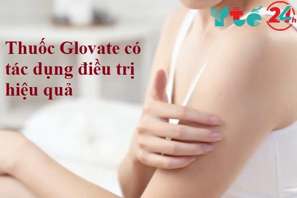 Glovate có hiệu quả tốt trong điều trị
