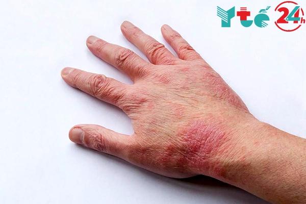 Glovate điều trị các bệnh da liễu