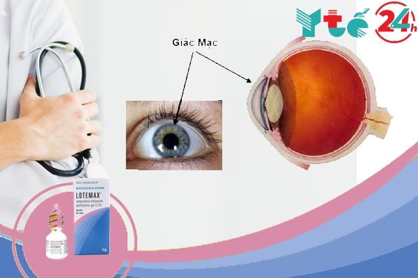 Lotemax - Điều trị bệnh về mắt