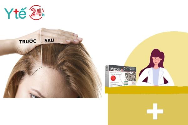 Maxxhair - Bí quyết cho mái tóc khỏe đẹp