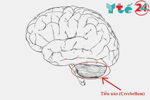 Waisan điều trị được bệnh thoái hóa tiểu não không?