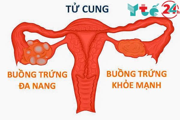 Sử dụng Glucophage điều trị buồng trứng đa nang