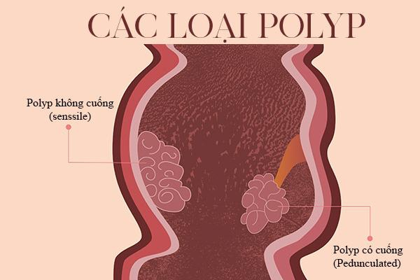 Các loại của bệnh Polyp hậu môn