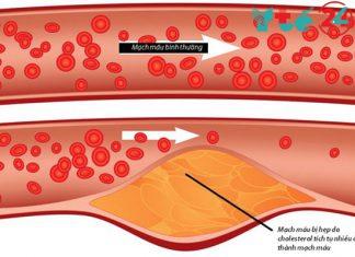 Cholesterol trong máu cao