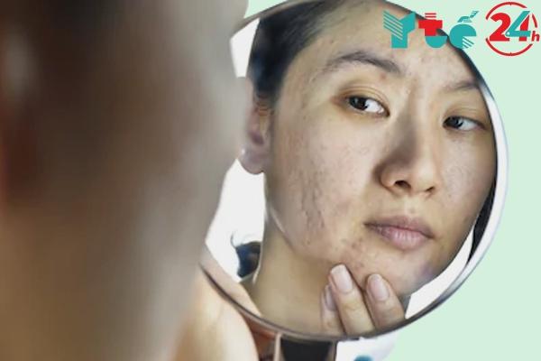 Cách chọn thuốc trị sẹo để phù hợp với bản thân