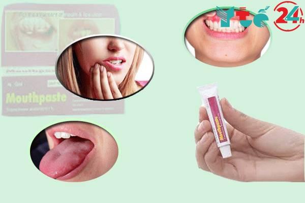Mouthpaste dùng trị bệnh gì?