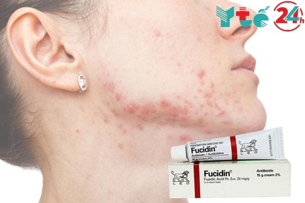 Một số tác dụng không muốn khi sử dụng Fucidin