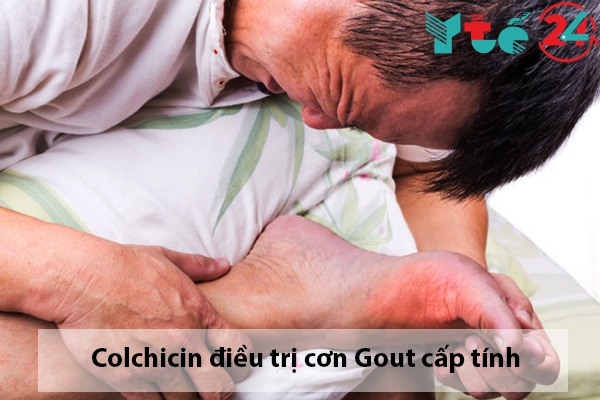 Thuốc Colchicin điều trị cơn gout cấp tính