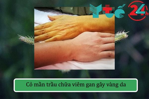 Cỏ mần trầu chữa viêm gan gây vàng da