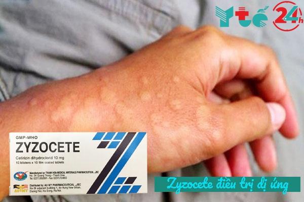 Chỉ định thuốc Zyzocete