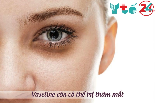 Vaseline trị thâm quầng mắt