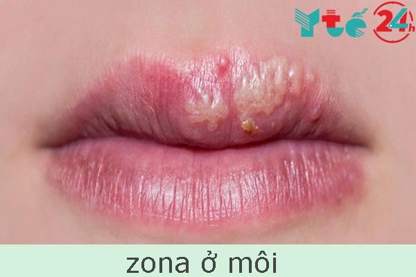 Zona ở môi