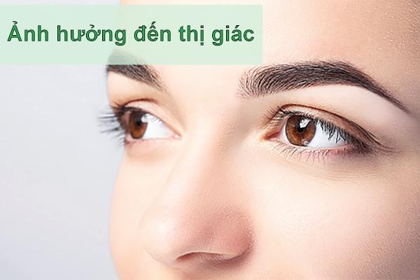 Ảnh hưởng tới thị giác là một trong những biến chứng nặng nề của bệnh giang mai
