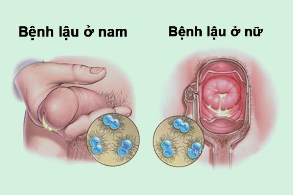 Triệu chứng bệnh lậu ở nam và nữ
