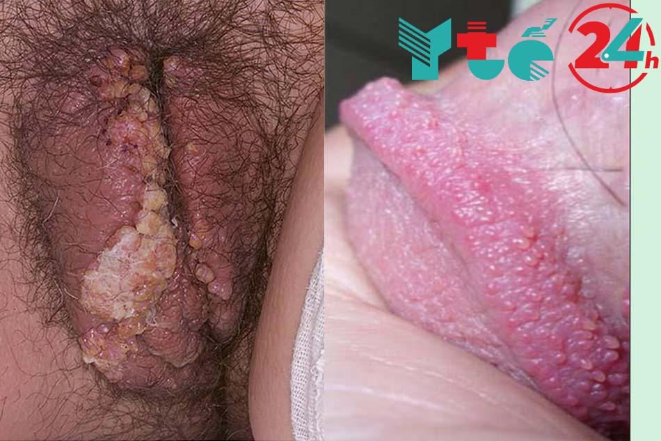 Triệu chứng sùi mào ga ở nữ giới và nam giới