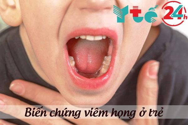 Những biến chứng nguy hiểm của viêm họng ở trẻ
