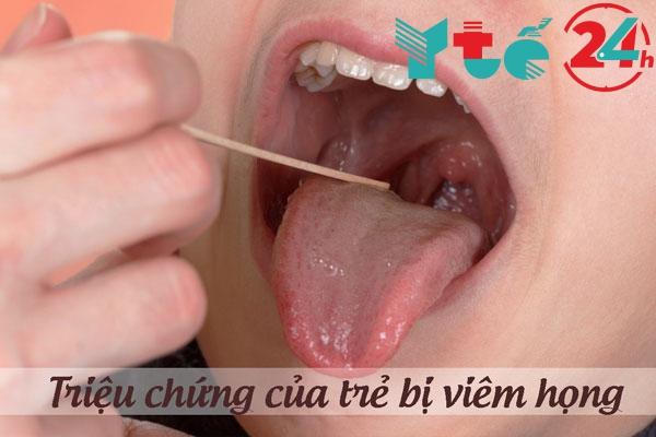 Triệu chứng lâm sàng của trẻ bị viêm họng