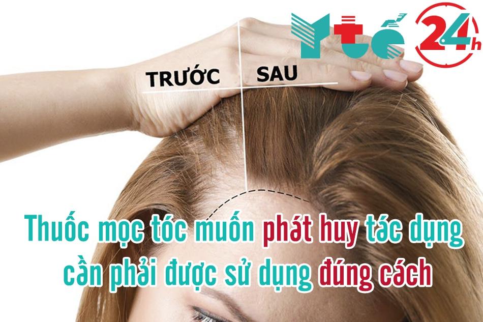 Sử dụng thuốc mọc tóc đúng cách sẽ phát huy hiệu quả tối đa