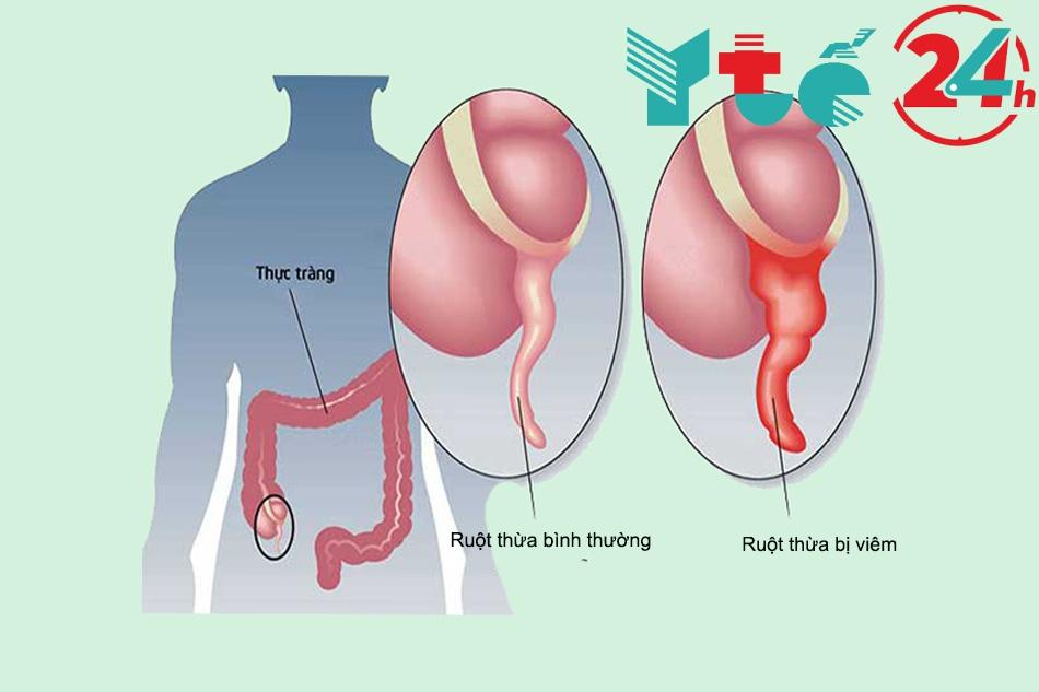 Viêm ruột thừa là gì mà lại cần phẫu thuật?