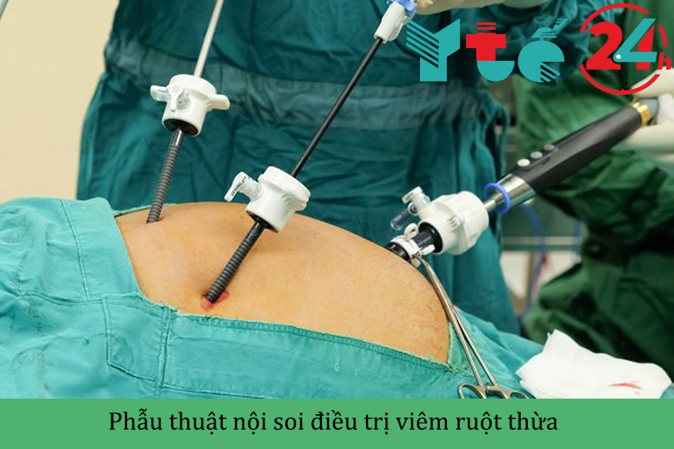 Phẫu thuật nội soi điều trị viêm ruột thừa